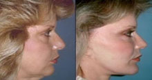 Facials - Before and After Treatment