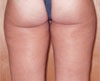 Cellulite - After Treatment
