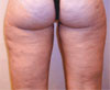 Cellulite - Before Treatment